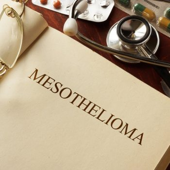 Best-Mesothelioma-Lawyer